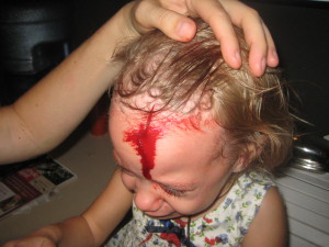 Head Wound  gash 001